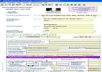 BNC pour Windows