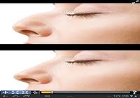 Chirurgie esthétique virtuelle
